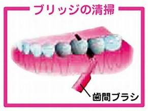 ブリッジ歯間ブラシ清掃
