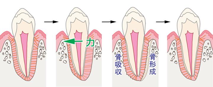 矯正での歯の動き方