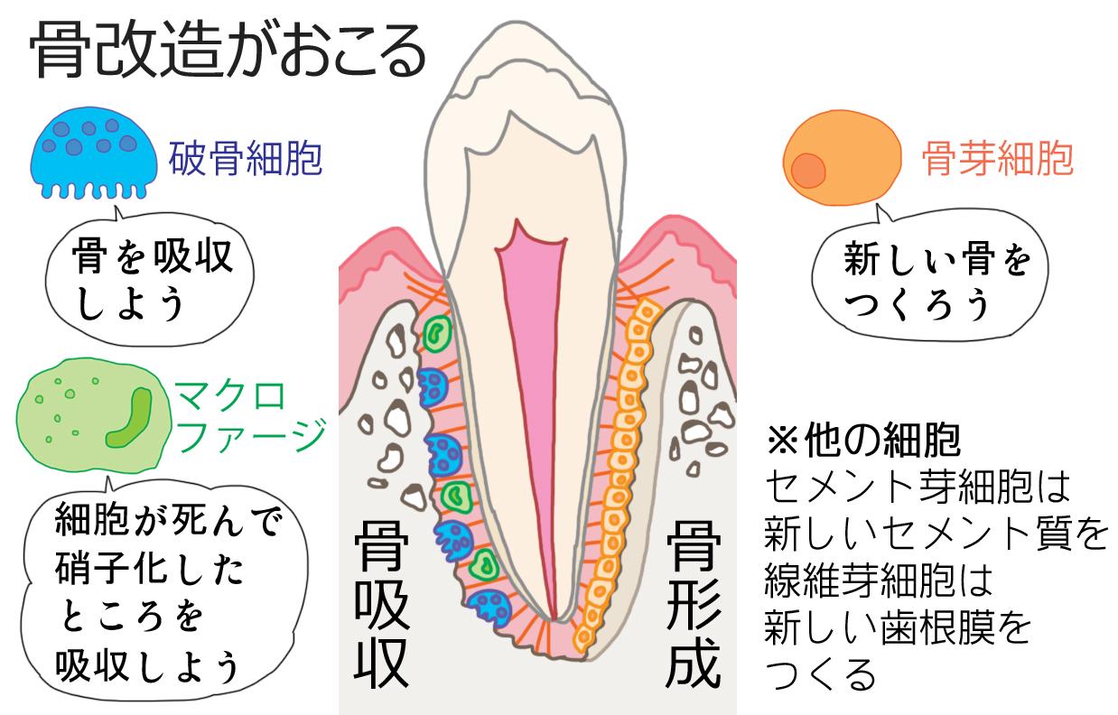 矯正における骨改造