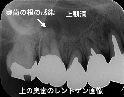 歯性上顎洞炎レントゲン