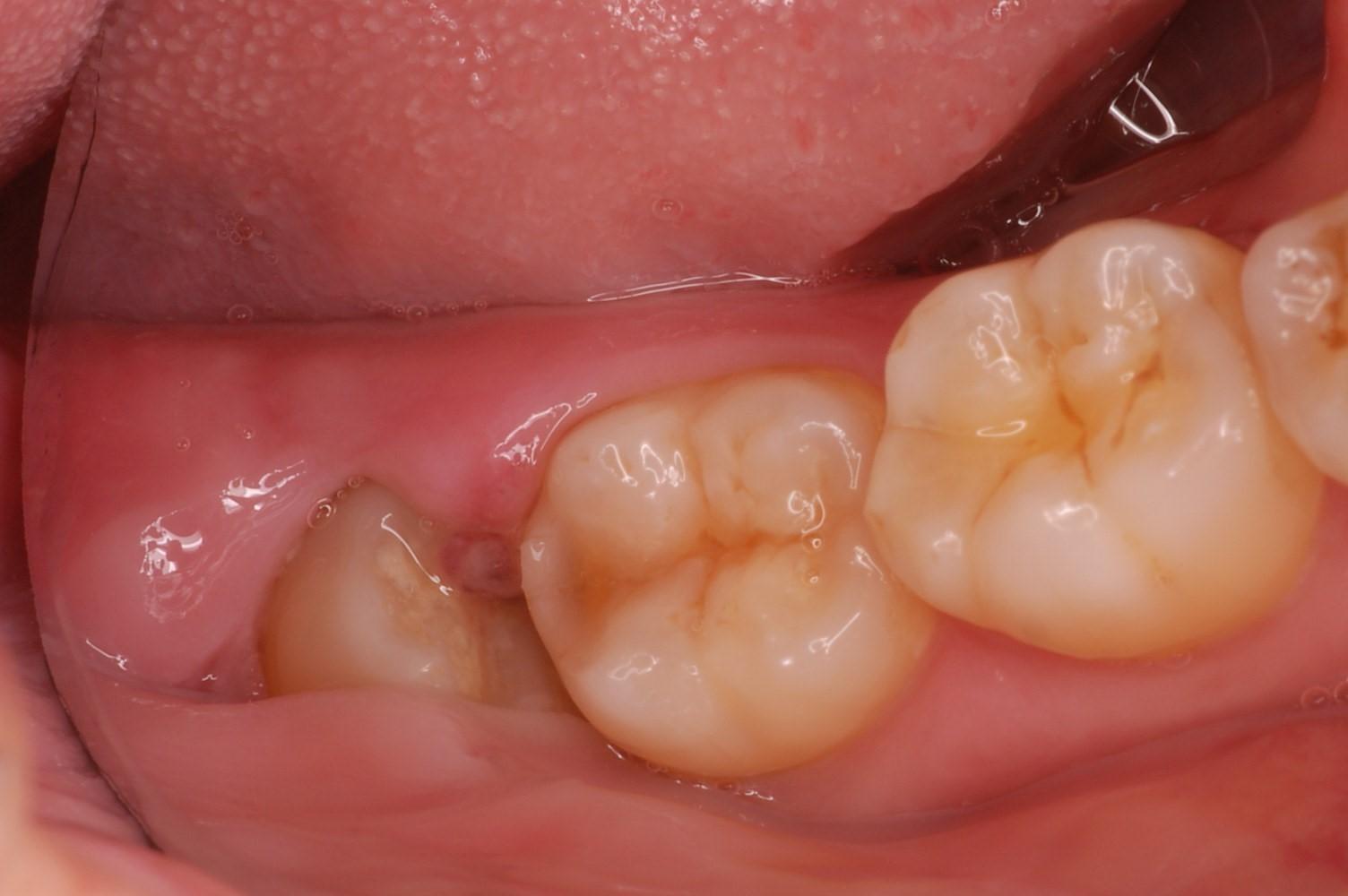 下顎の歯茎の腫れ