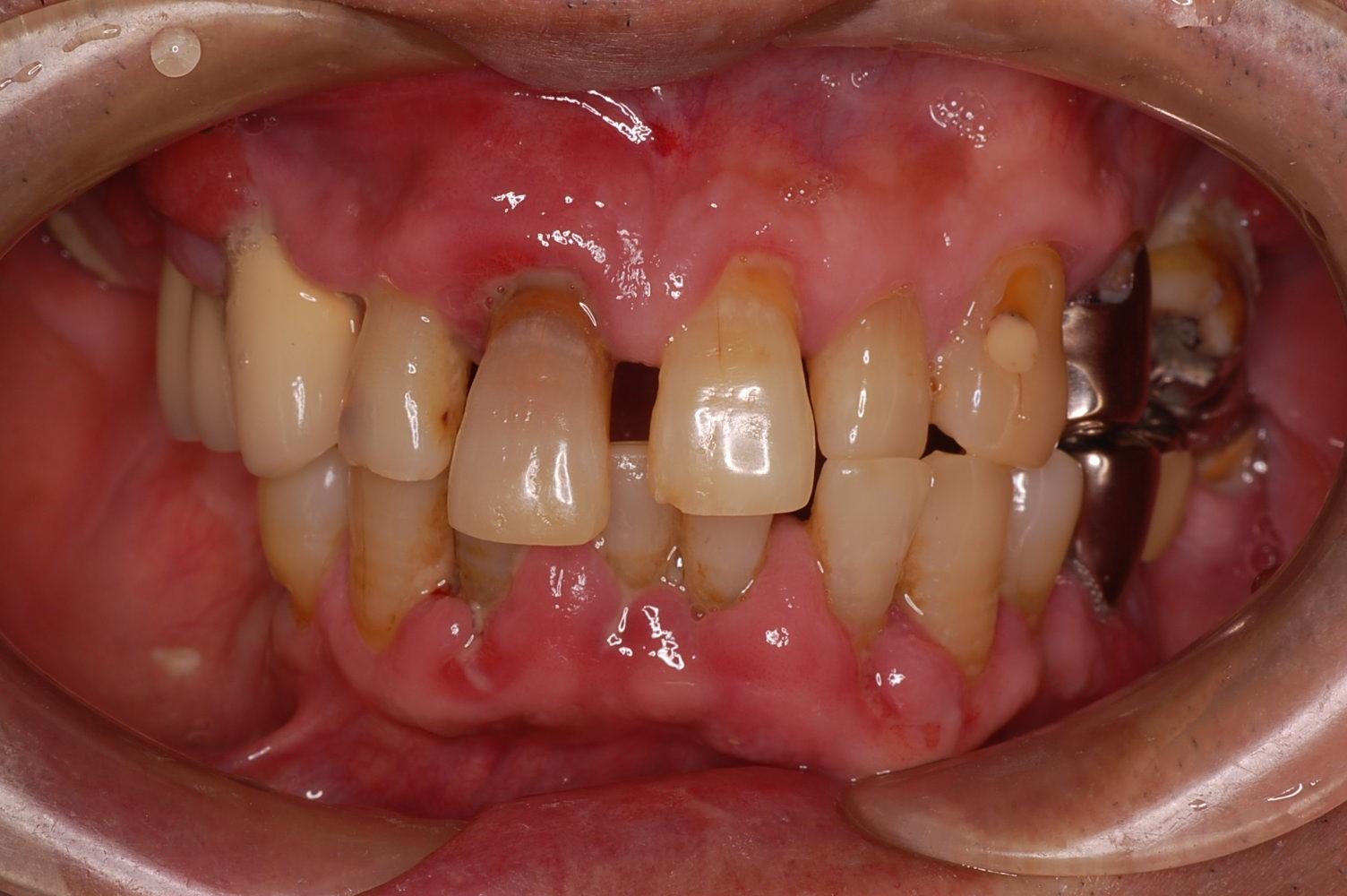 歯周病 歯ぐきの腫れ