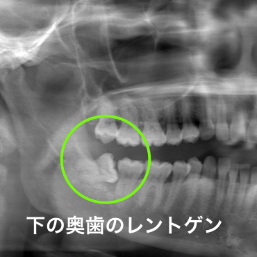 下顎の歯ぐきの腫れレントゲン