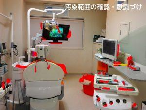 歯科医院の汚染範囲