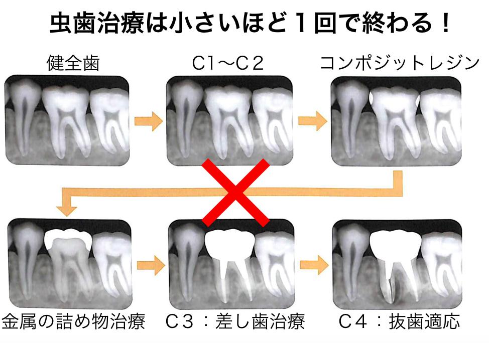 虫歯治療の案循環