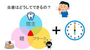 虫歯の原因①