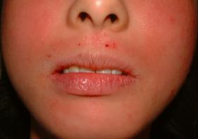 金属アレルギー