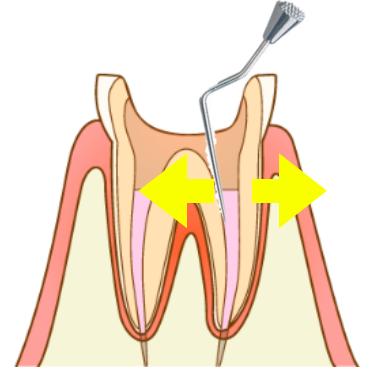 歯根破折の原因の側方加圧
