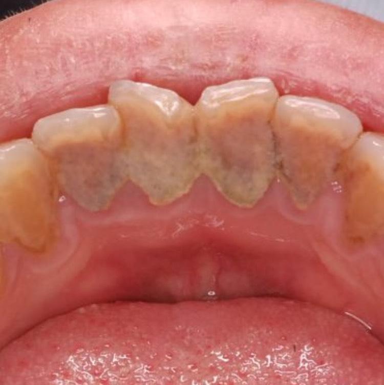 除去不可能な歯石の口腔内写真