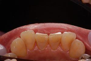 除去可能な歯石の口腔内写真