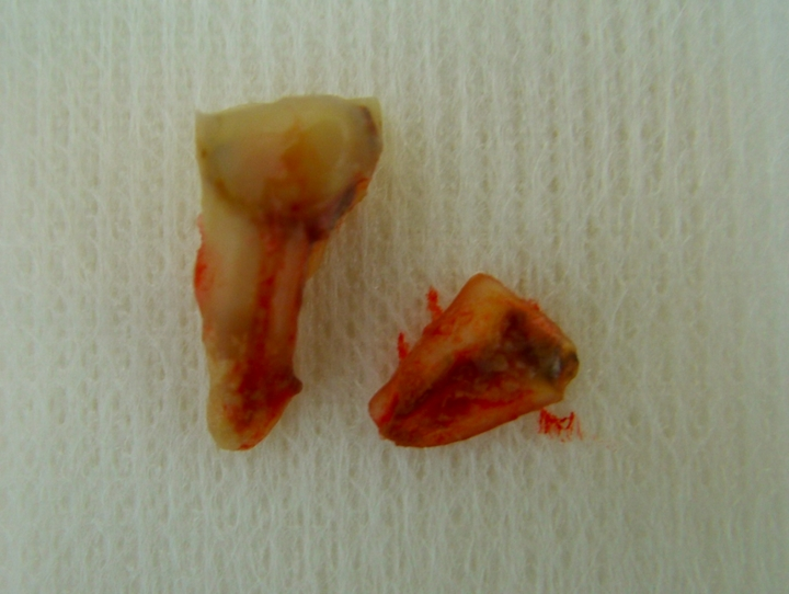 歯根縦破折