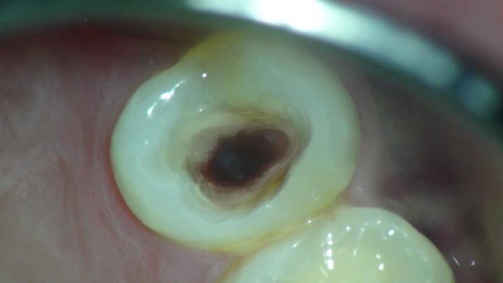 過剰切削は歯根破折の原因
