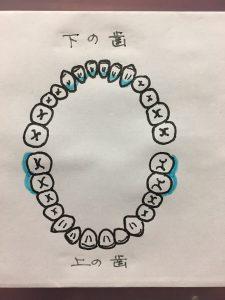 歯石がつきやすい部位のイラスト