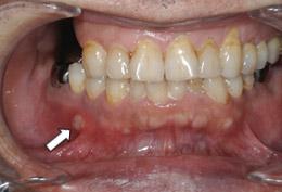 アフタ性口内炎の口腔内写真