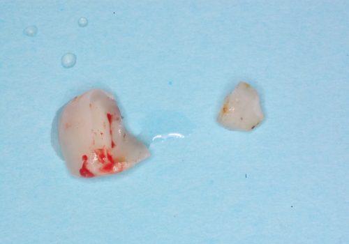 歯の破折片