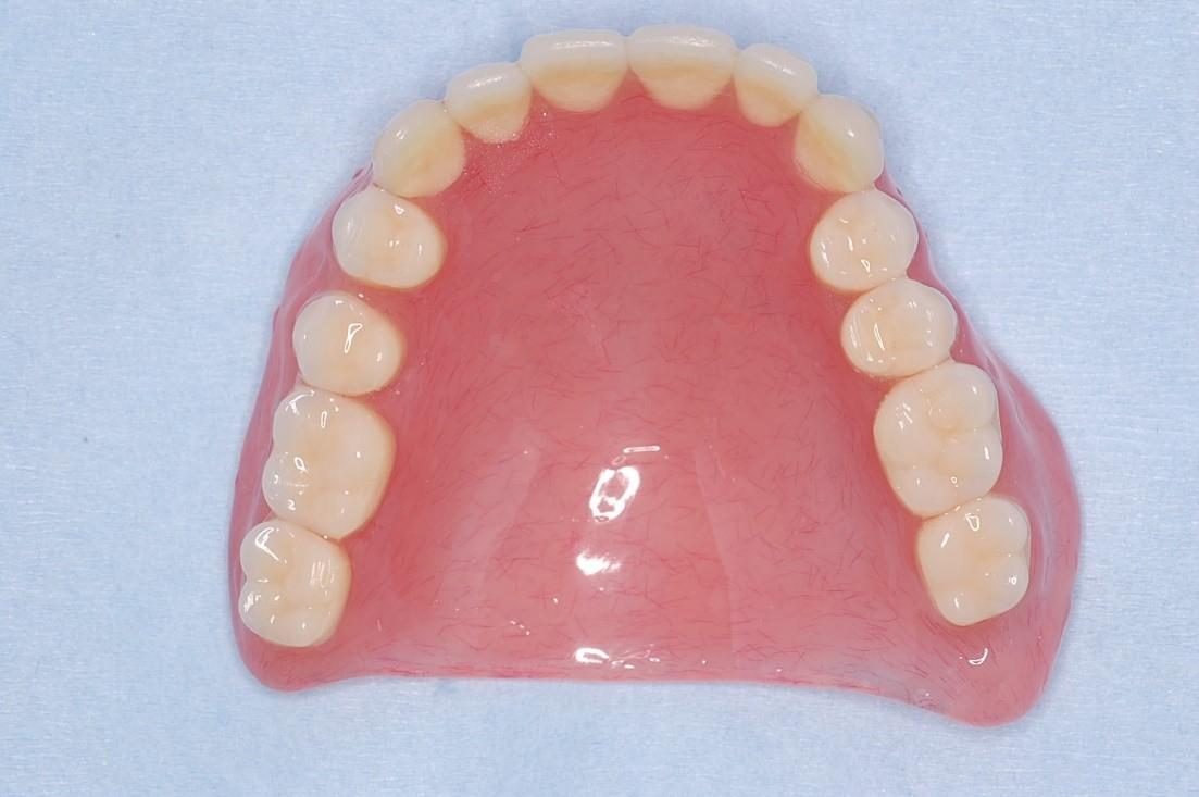 上顎の総入れ歯