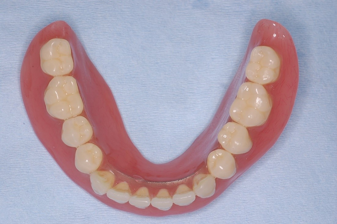 下顎の総入れ歯