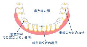 歯磨き方法6