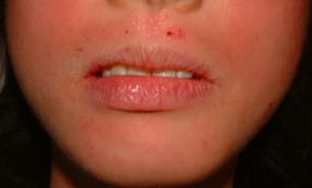 歯科金属アレルギー皮膚症状