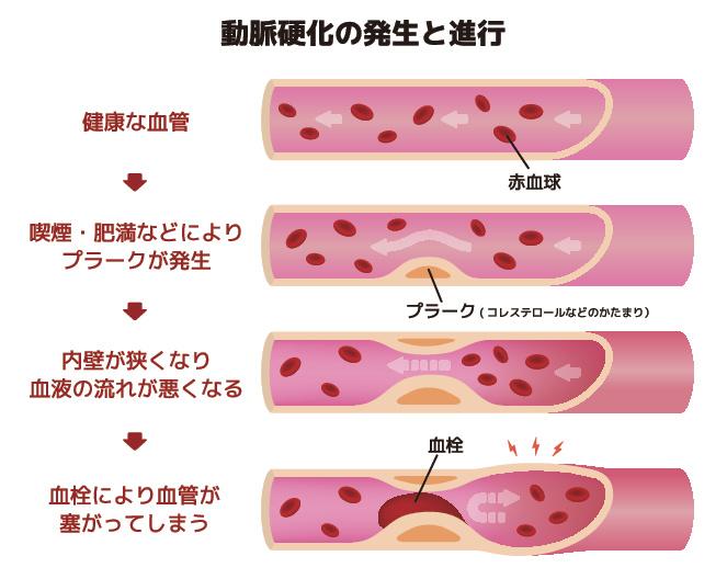 動脈硬化の発生と進行