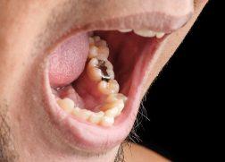 虫歯 銀歯