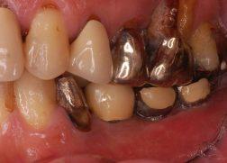銀歯のプラーク
