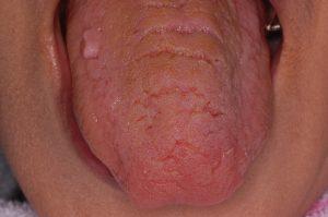 ドライマウス 舌