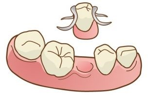 部分義歯 クラスプ