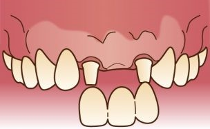 前歯のブリッジ