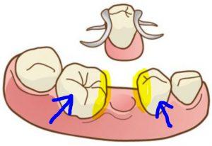 鉤歯の周りの汚れ