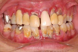 辺縁性歯周炎