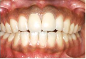 歯肉メラニン色素