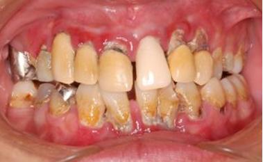 歯周病歯肉正面観